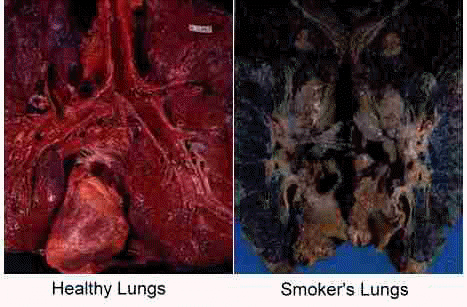 Why You Need to Stop Smoking, Now!   FitNish.com